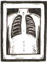 You may have chest tubes after surgery. Chest tubes drain old blood from where you had your surgery. They also help keep your lungs inflated. You will have a chest x-ray each day.