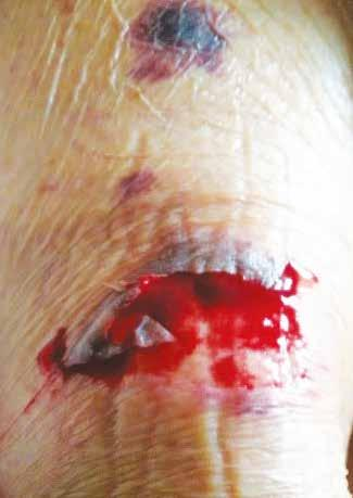 Although STs start as acute wounds, they frequently become painful chronic and complex wounds, which have a high propensity to develop infections.